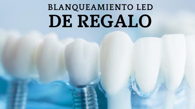 Coloca tu implante dental en Diente Sano y llévate el blanqueamiento LED gratis.